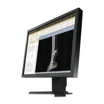 "Monitor para uso médico Eizo HD LCD 23"""